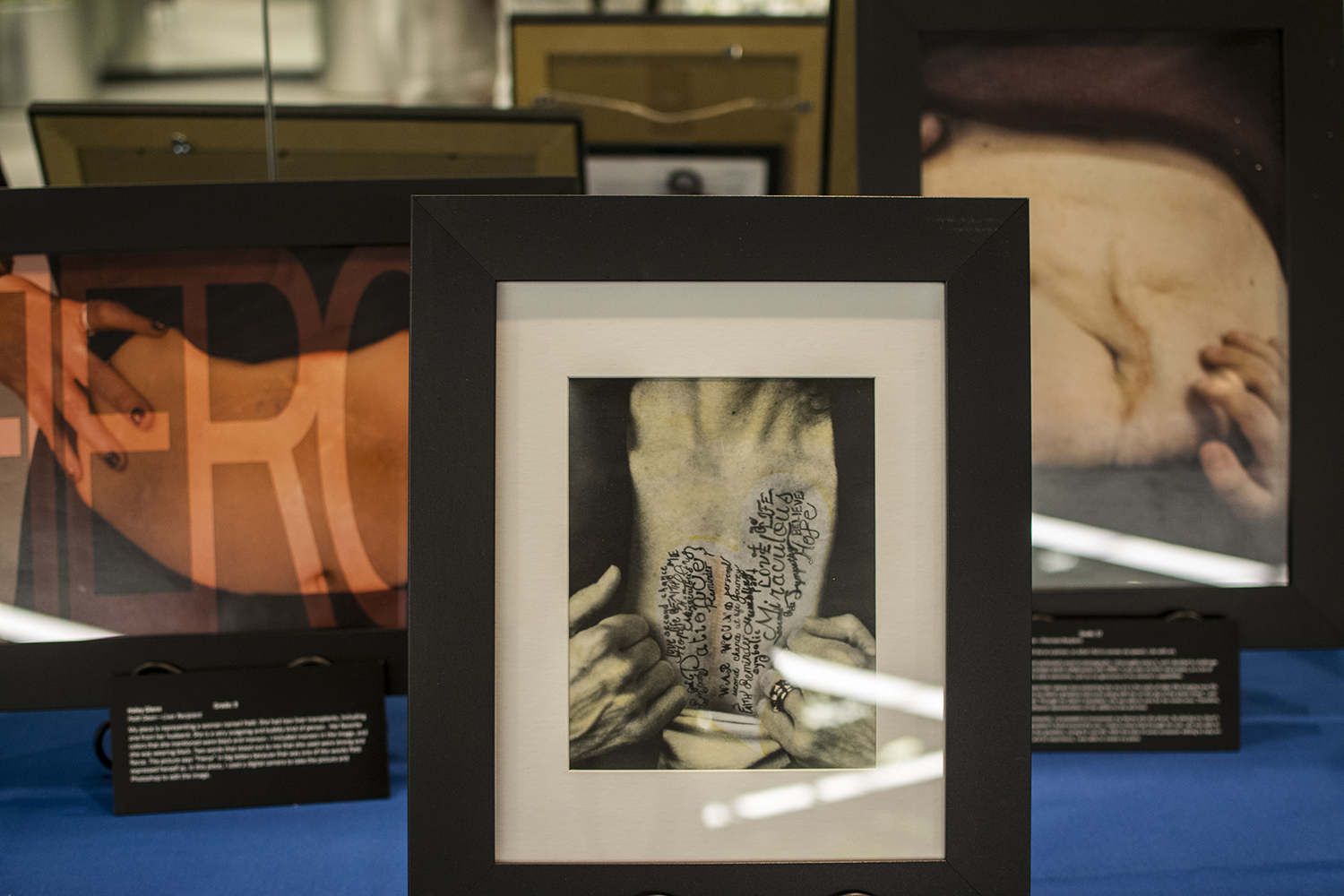 Pictures at the 'Art of the SCAR' is seen on Tuesday, Sept. 11, 2018. It is a traveling exhibition starring transplants recipients and living donors.