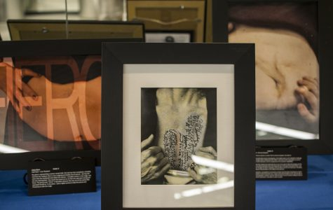 'The Art of the SCAR' exhibit details the hidden beauty of organ transplants